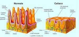 Celiachia villi intestinali